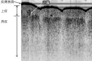 OCT イメージ 親指の断層写真